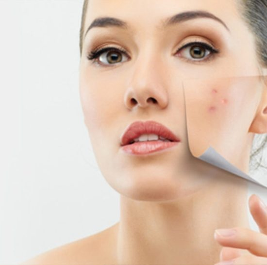 Acne Scarring and Acne Treatment
