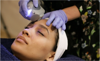 Acne Treatment, Theraclear is a laser treatment, Paarl