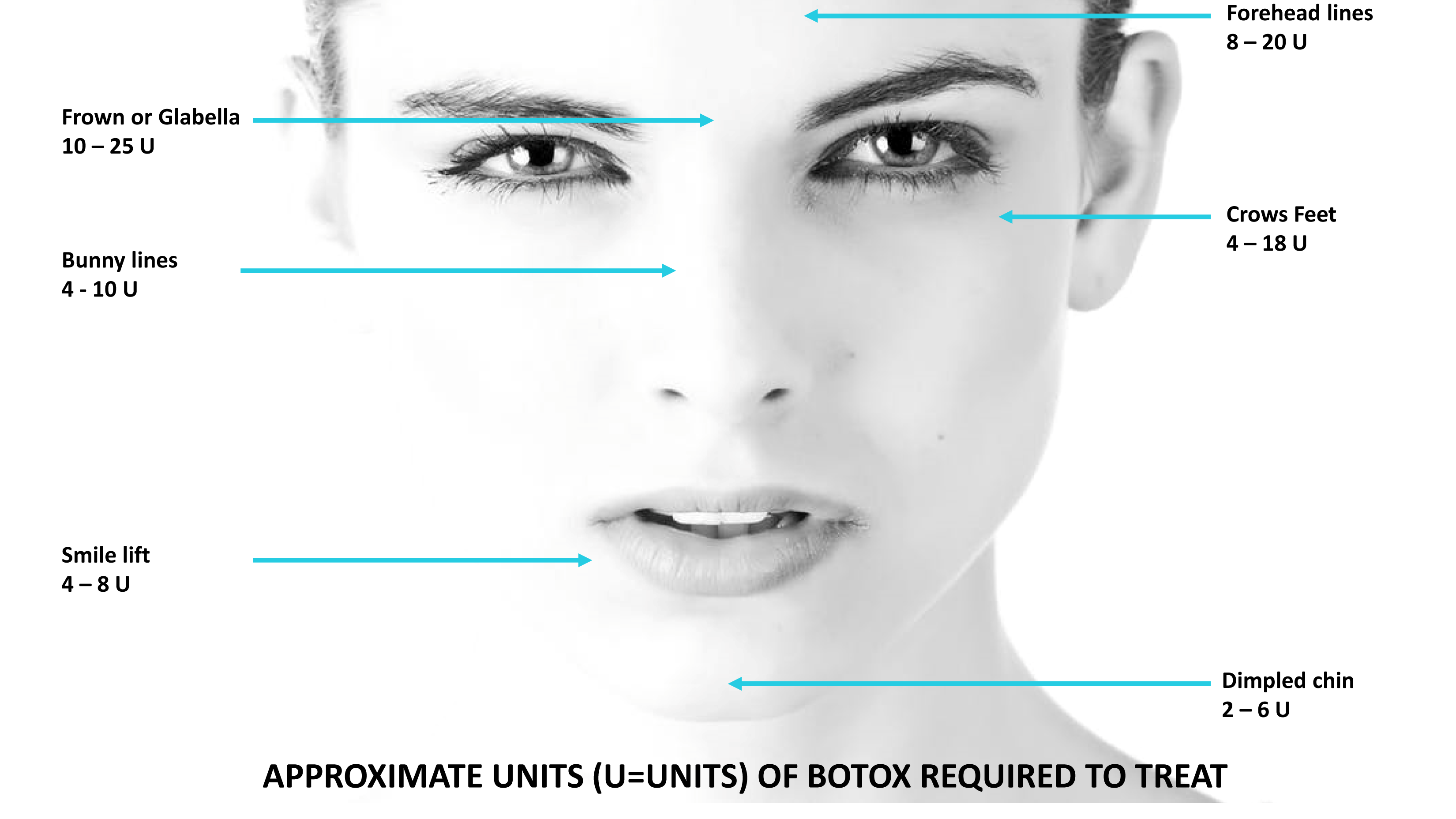 Diagram shows common areas of the face that are treated for Botox, namely; Frown or Glabella (10-25 units), Bunny Lines (4-10 units), Smile Lift (4-8 units), Dimpled Chin (2-6 units), Crowns Feet (4-18 units), Forehead Lines (8-20 units).