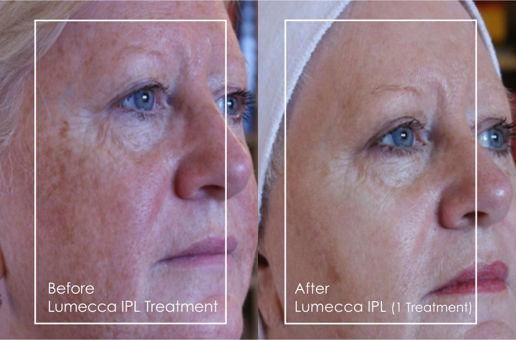 So how does IPL work? Different targets in the skin absorb the light from the IPL device