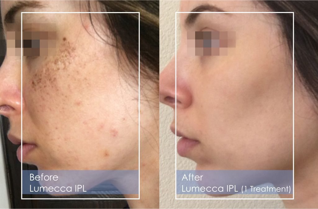 What can I expect after Lumecca IPL treatment?