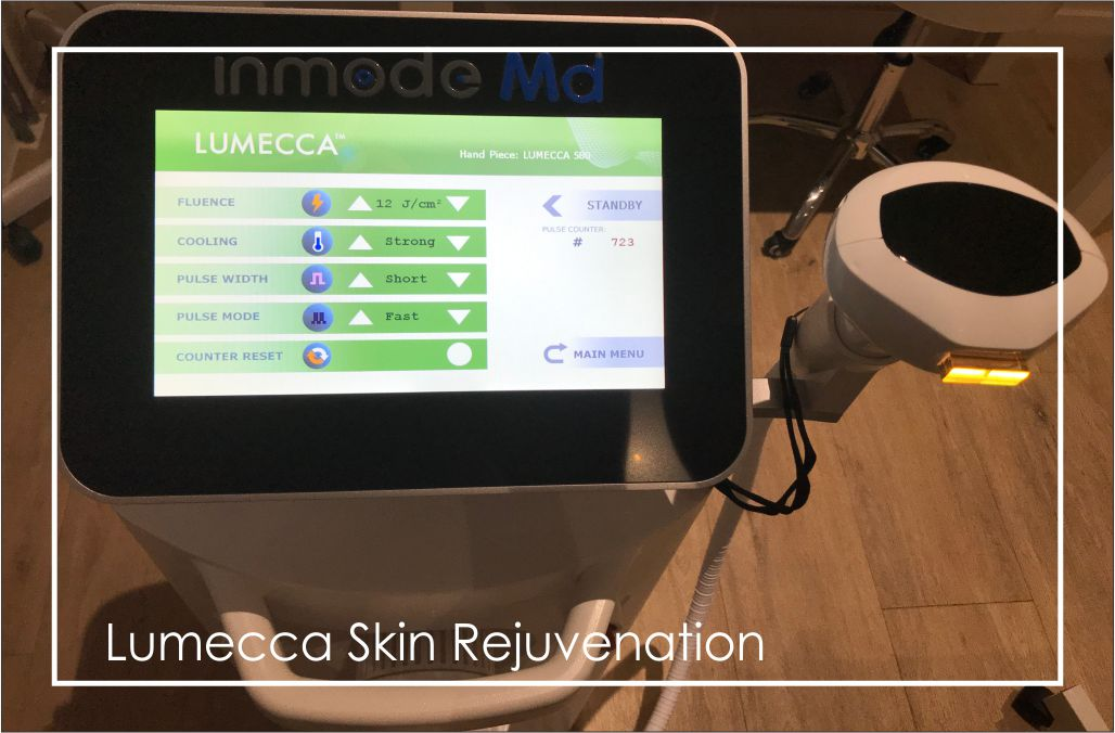 Why did I choose the Lumecca IPL treatment system? Complete photo rejuvenation in 1 or 2 treatments for most patients versus 4-6 treatments with other standard IPL's. IPl treatment available at Dr Ria Smit, in Paarl.